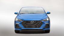 Hyundai Elantra Sport 2017